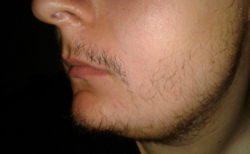 22 года не растет борода