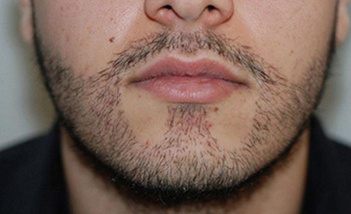 Как ухаживать за бородой - вросший волос